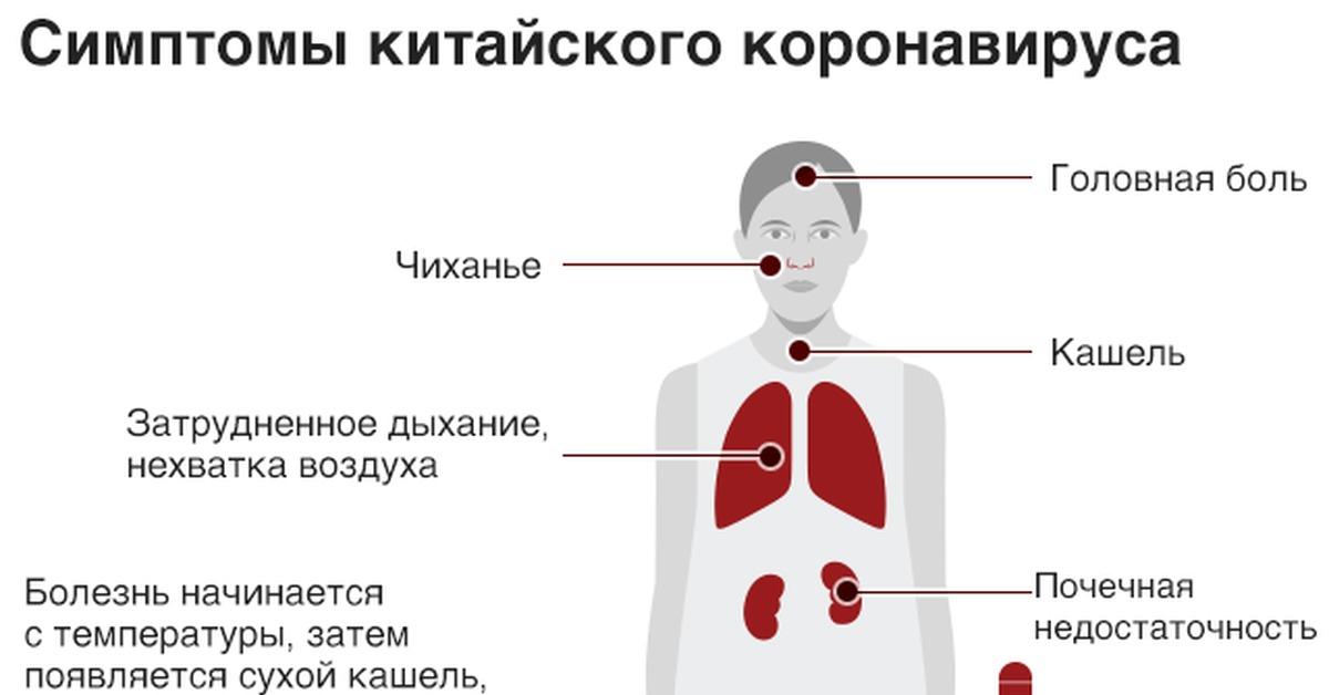 Какие симптомы у коронавируса 2020 года?